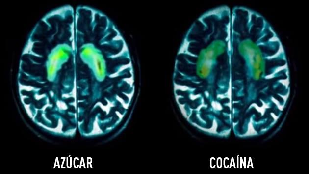 O que o açúcar faz com o nosso cérebro? Confira!