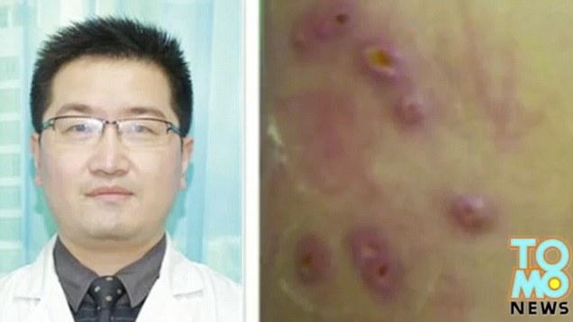 Chinês realiza cirurgia para retirar 20 larvas que viviam em seu corpo