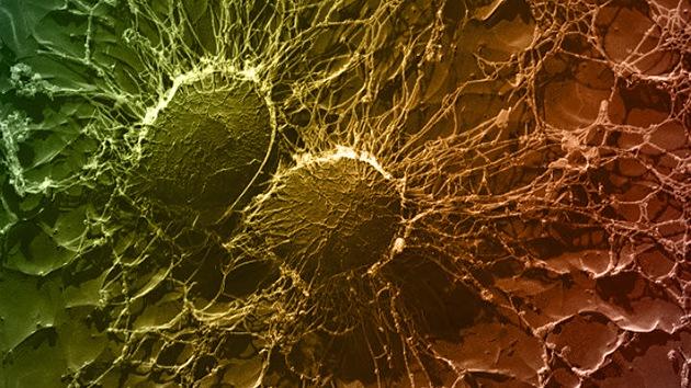 Cientistas desenvolvem substância que é uma alternativa aos antibióticos
