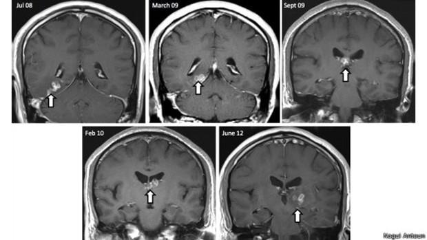 Homem faz exame e descobre parasita no cérebro