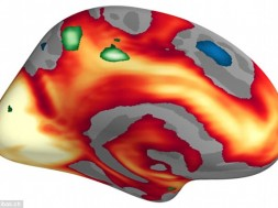 atividade cerebral