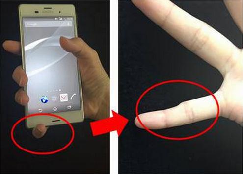 Usar o smartphone em excesso pode causar deformidade nos dedos