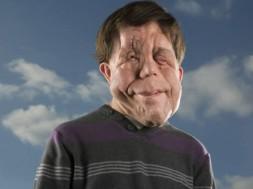 homem rosto desfigurado