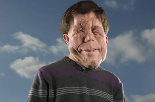 Homem de rosto desfigurado chama atenção ao passar nas ruas