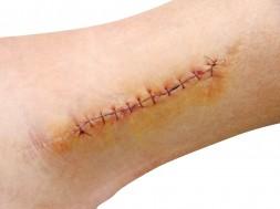acelerar-a-cicatrizacao-8211-remedios-caseiros-para-ajudar-a-cicatrizar