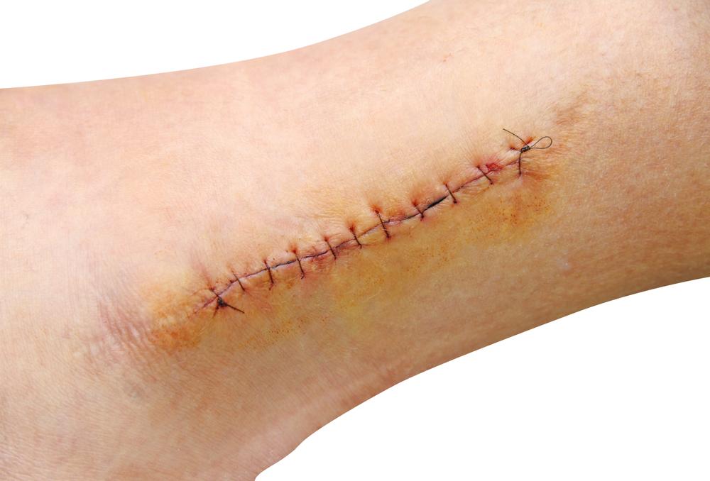 O que acontece durante o período de cicatrização de uma ferida?
