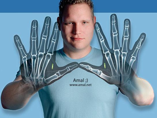 Amal Graafstra implantou um chip RFID em sua mão esquerda em 2005 (Foto: Divulgação)