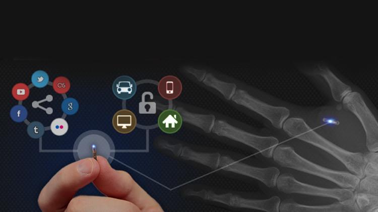 Implante de chip está transformando pessoas em 'ciborgues'