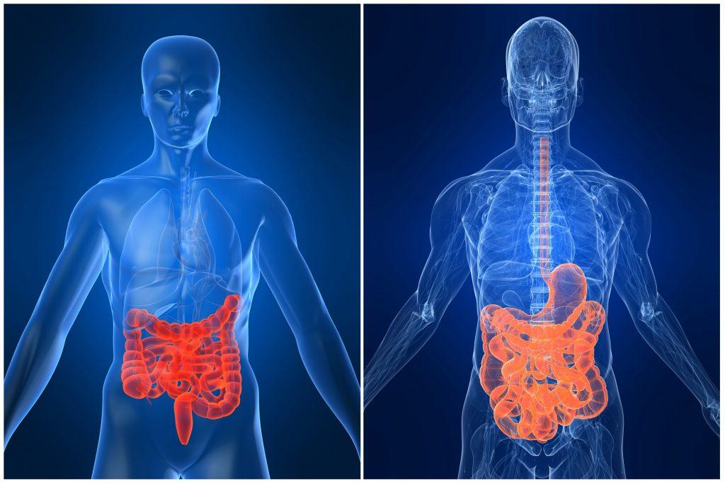 Caminhada chama atenção para doenças inflamatórias intestinais em Natal