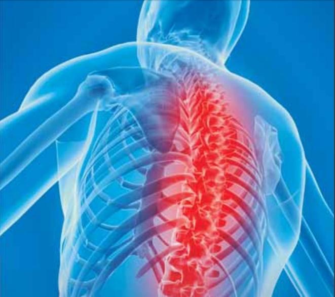 Dor nas costas pode ser sinal de espondilite anquilosante
