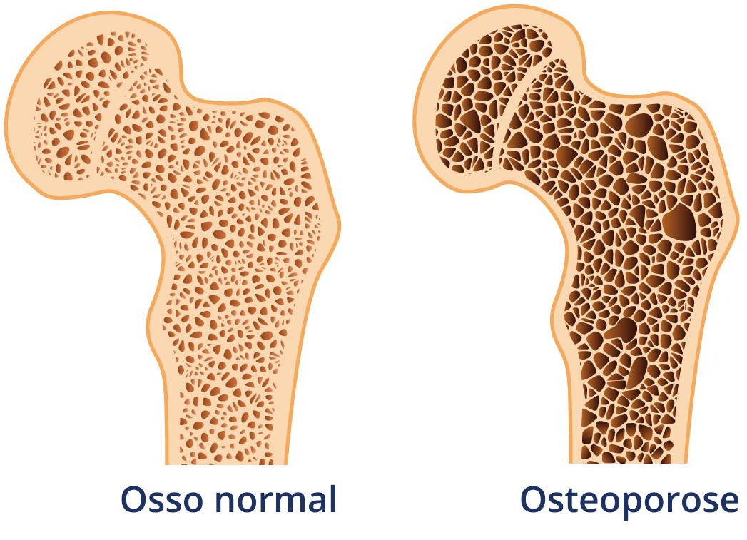 UFRN abre grupo terapêutico para pessoas com osteoporose
