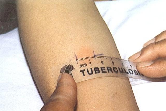 Você sabia? Natal possui 5 unidades de referência para testes de diagnóstico de tuberculose