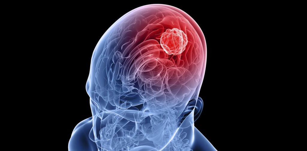 glioblastoma tumor cerebral