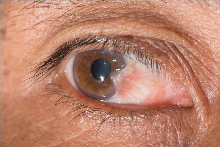 Exposição ao sol sem proteção ocular pode causar Pterígio