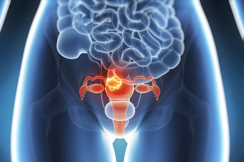 Vitamina D pode prevenir desenvolvimento de miomas, diz estudo