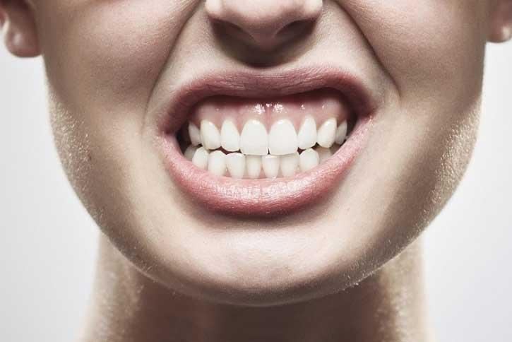 Bruxismo causado por estresse pode levar a perda da dentição
