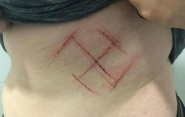 Jovem marcada com suástica forjou mutilação, diz polícia