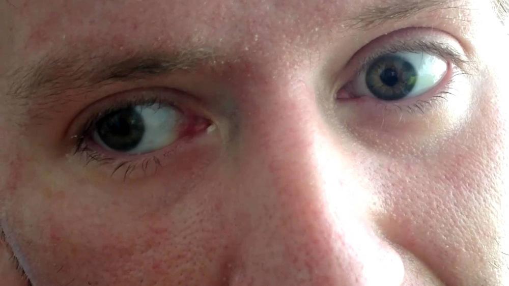 Nistagmo a doença que causa tremores incontroláveis nos olhos e não tem cura