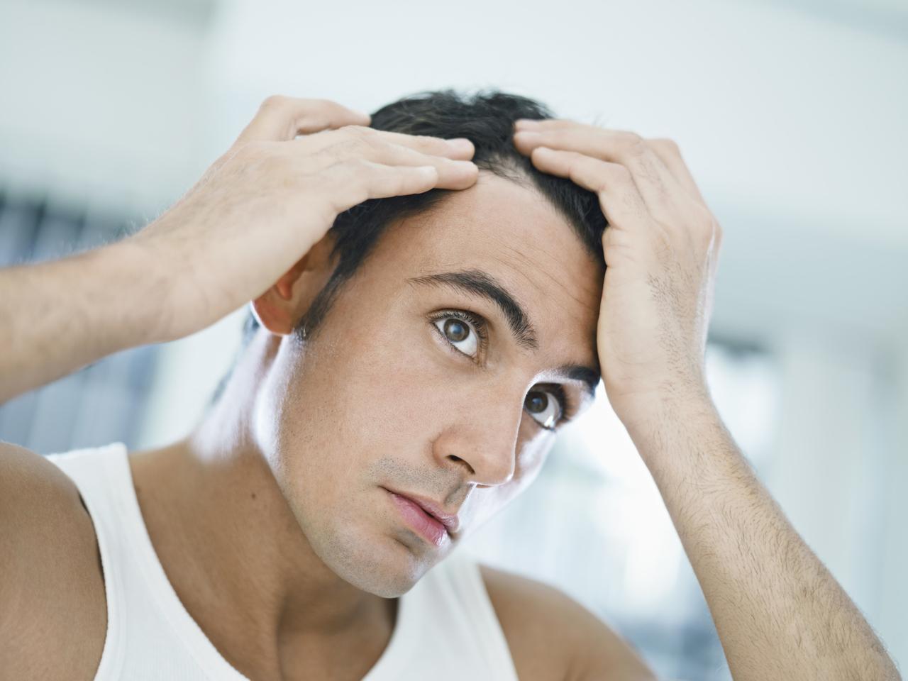 queda-de-cabelo-e-minoxidil