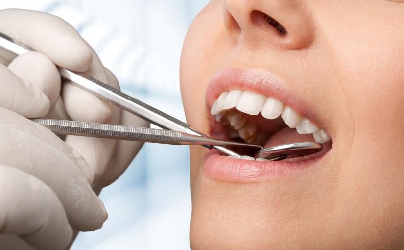 Saúde bucal da mulher: saiba em quais fases é preciso ter mais atenção