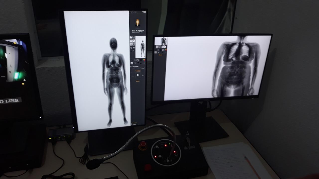 """Presídio de Alcaçuz passa a operar o """"body scan"""" em dia de visitas"""