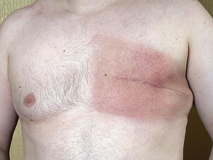 Câncer de mama também atinge os homens