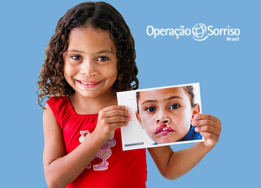 Cirurgias gratuitas em Mossoró para pacientes com fissura labiopalatina