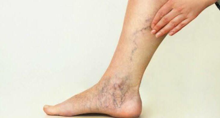 Fraturas, quedas e acidentes podem causar trombose