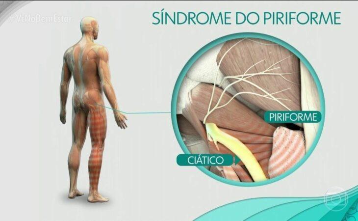 Síndrome do piriforme: o que é, causas e como tratar