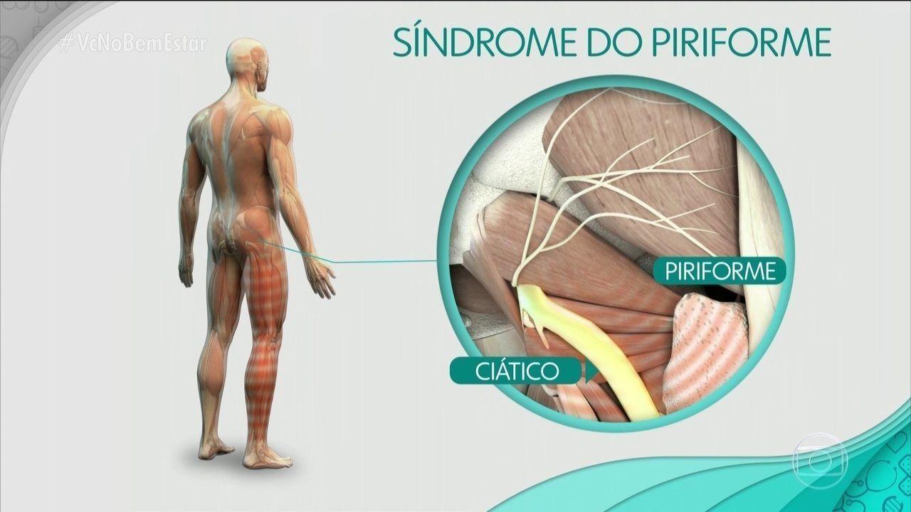 Síndrome do piriforme o que é causas e como tratar