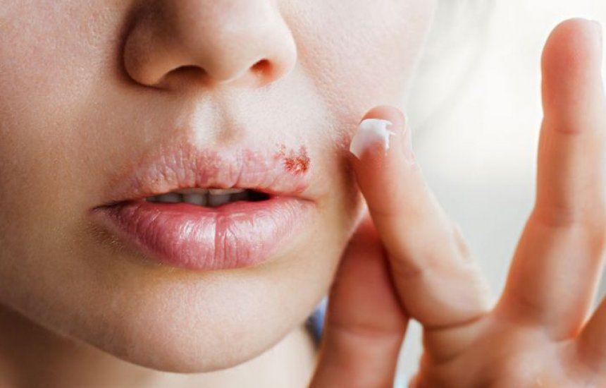 Oito em cada 10 brasileiros podem estar infectados pelo herpes e não sabem