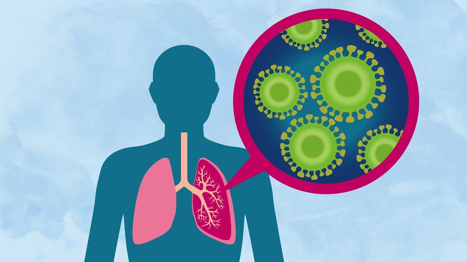 Coronavírus é preocupação do momento mas pneumonia mata 7 pessoas por hora no Brasil