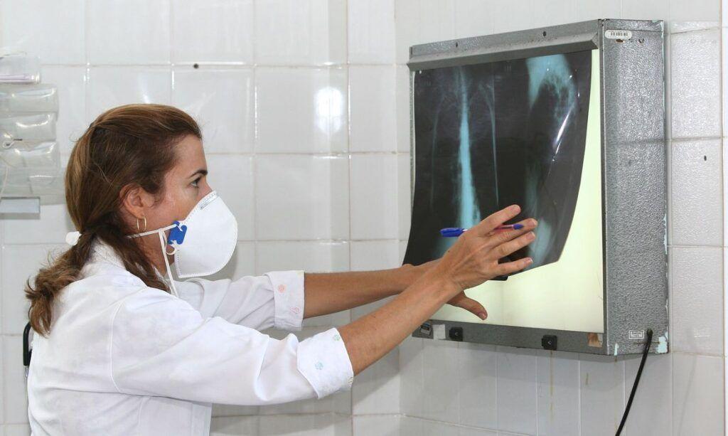 Pesquisadores vão testar vacina contra tuberculose em infectados por coronavírus
