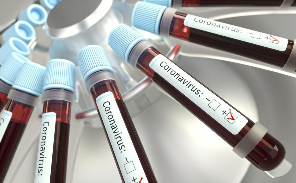 Dos 312 casos positivos de coronavírus em Natal 219 já estão curados