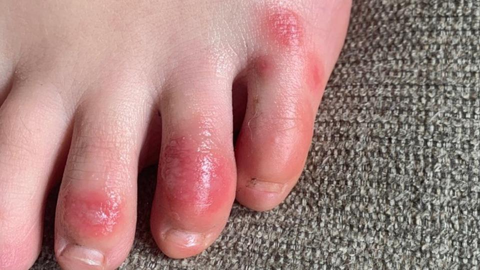 5 manifestações na pele que podem significar que você foi infectado pela Covid-19