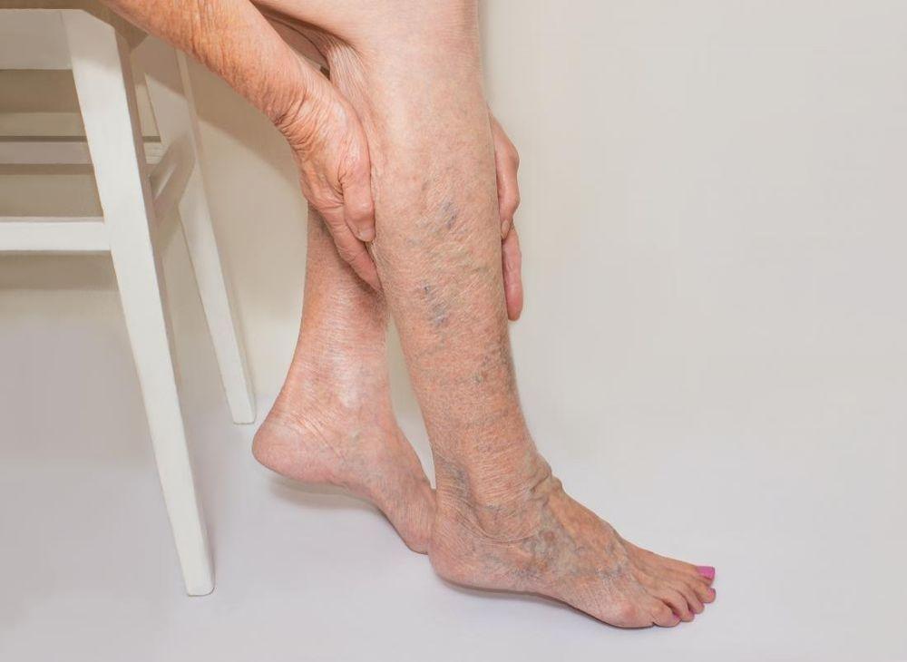 7 dicas para evitar doenças circulatórias que são comuns no inverno
