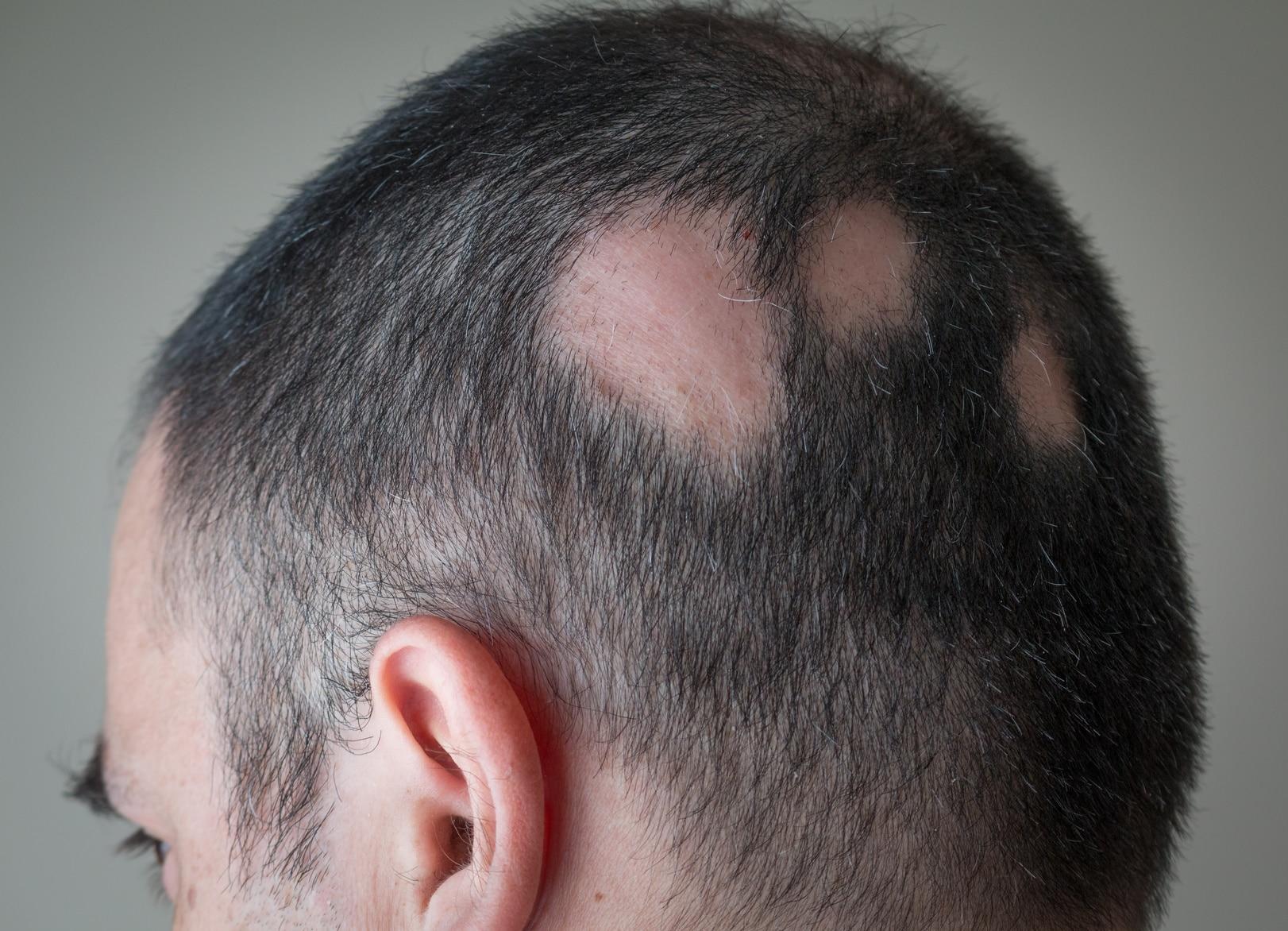 O que é Alopecia Areata? Patologia afeta participante do BBB